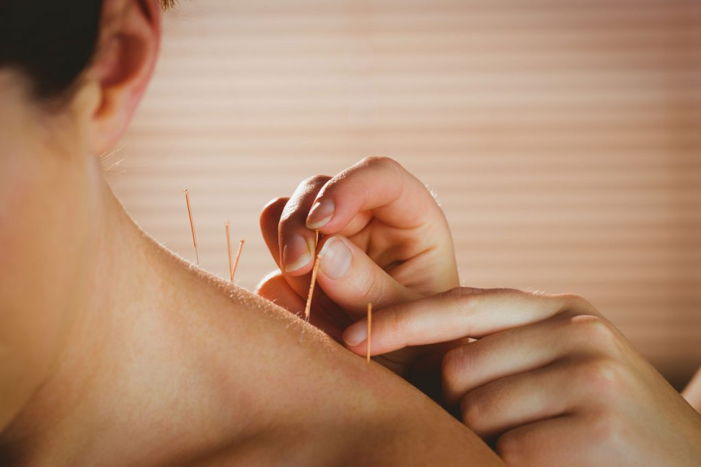 This image has an empty alt attribute; its file name is Body-Acupuncture-right-side-pic-2-1024x683.jpg